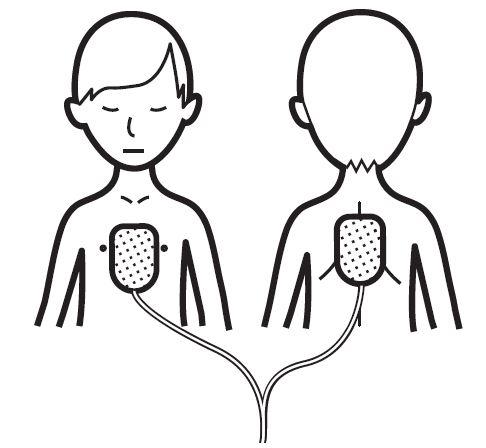 Positionnement des électrodes de défibrillateur pour un enfant